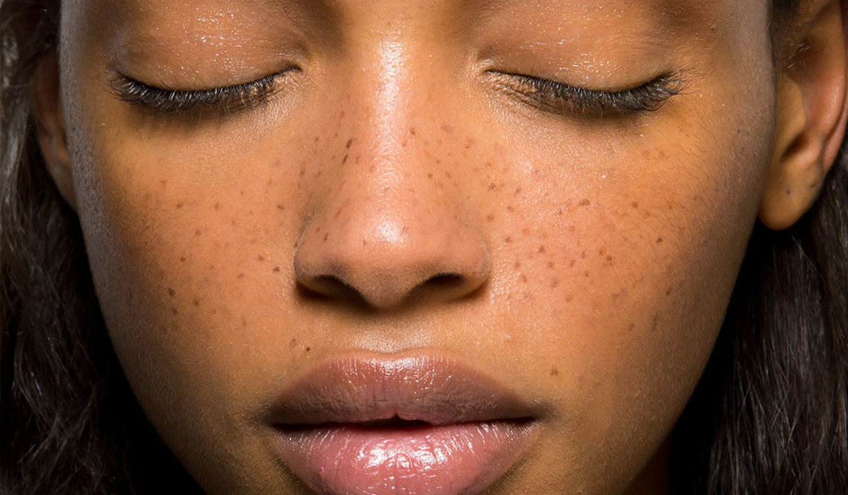 Faux Freckles Are A Thing And Here S How You Get Them Nbga No